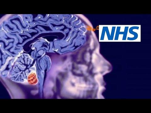Non Cancerous Brain Tumour Symptoms
