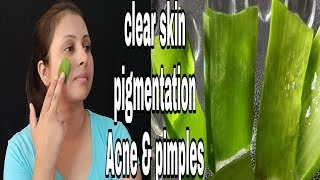Get clear skin,remove pigmentation,acne pimple and scars with fresh ALOE VERA GEL  kaurtips