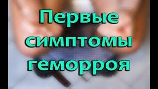 видео Стадии геморроя у женщин