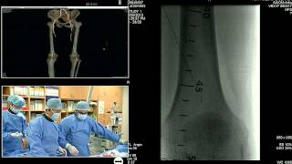 Video TCTAP 2015 Endovascular Live Case Session III. Below the Knee Intervention download MP3, 3GP, MP4, WEBM, AVI, FLV Juli 2018