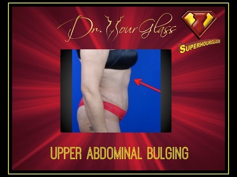 Tummy tuck and the upper abdominal bulging Dr. Hourglass Houston, TX