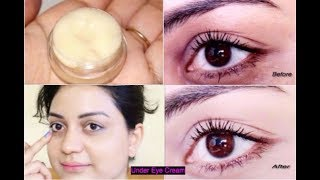 EYE CREAM To Remove Intense Dark Circles, Fine lines, Puffiness, Wrinkles & Spots Naturally & Fast