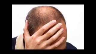 Pictures, Images, Photos of Male Pattern Baldness