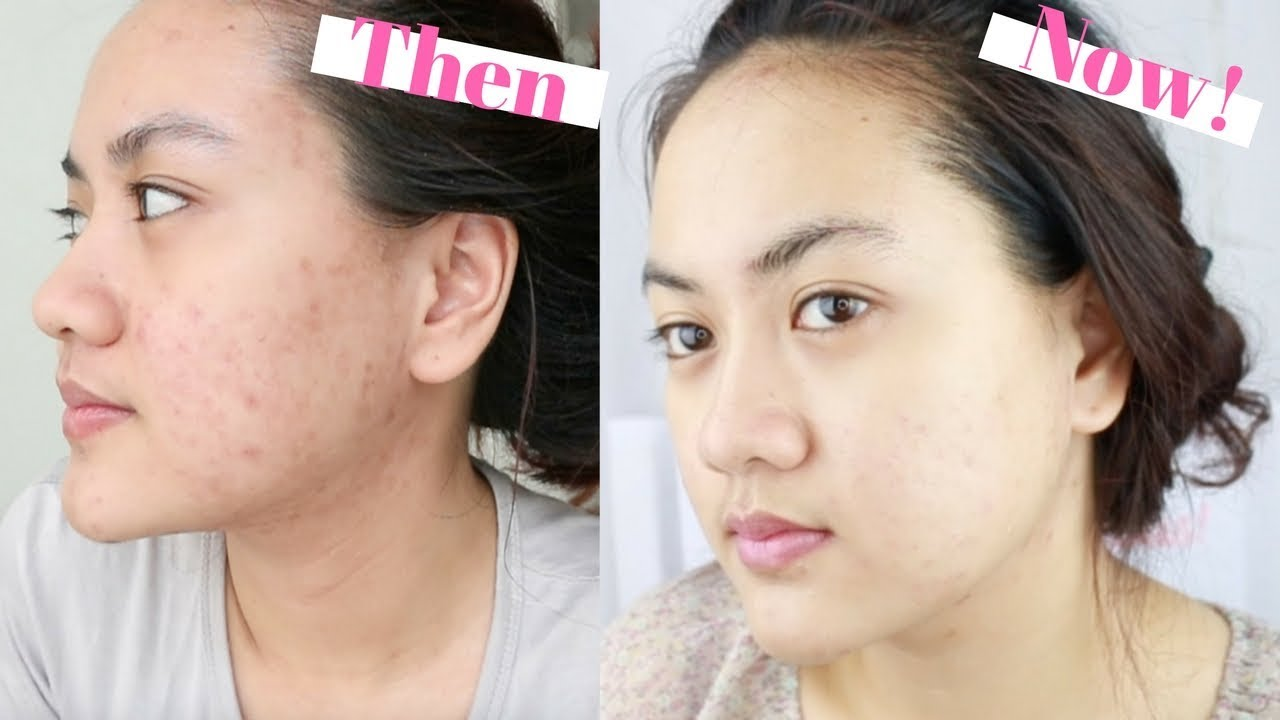 Review Clean And Clear Natural Bright Untuk Jerawat