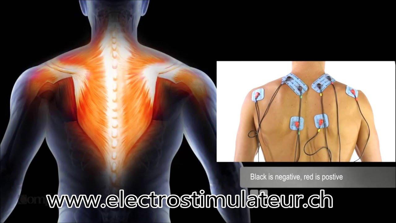 Placement Et Position Electrode Compex Pour Les Trapèzes