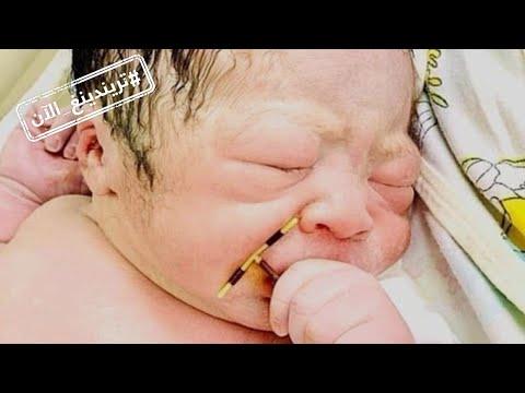 تريندينغ الآن | مولود يحمل جهاز منع الحمل في يده.. سابقة من فيتنام  - نشر قبل 16 ساعة