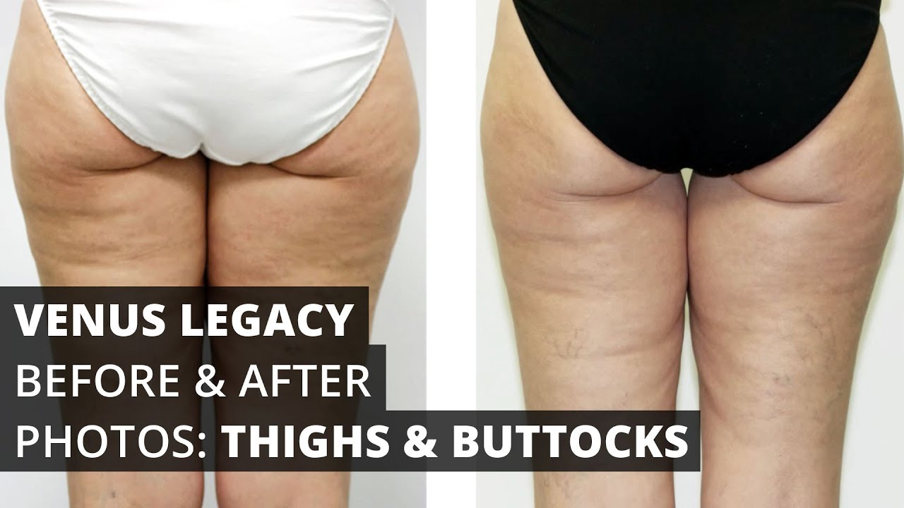 Venus Legacy™ Before & After Photos: Buttocks and Thighs