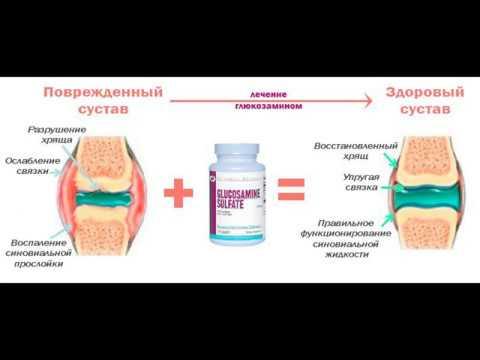 Дона препарат от боли в суставах при артрозах содержит глюкозамин для суставов. Виды глюкозаминов