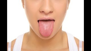 What a Healthy Tongue Should Look Like
