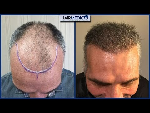 The Renaissance Medical Center For Aesthetic Surgery Hair