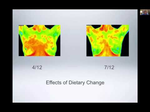 The value of thermography with radiologists, Dr. Tom Hudson and Dr. John Bartone