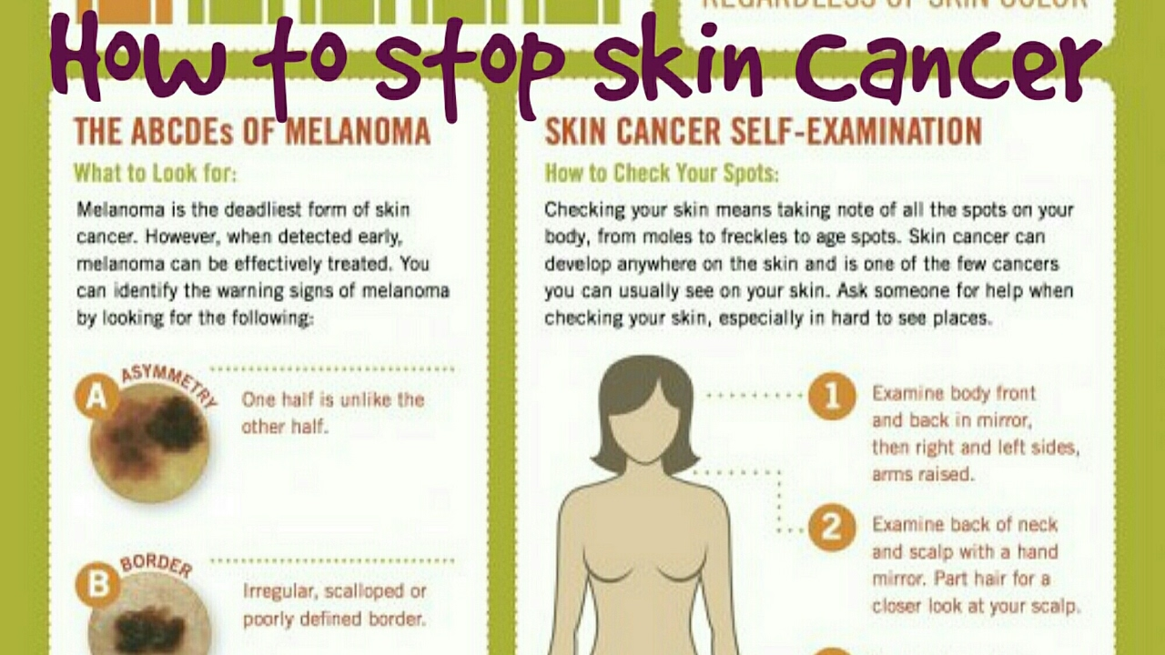 How to check a mole on your skin for cancer - YouTube