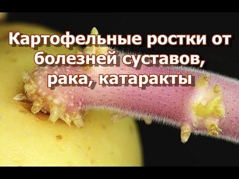 картофельные ростки от катаракты отзывы