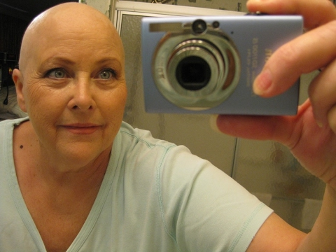 Bald means FREEDOM
