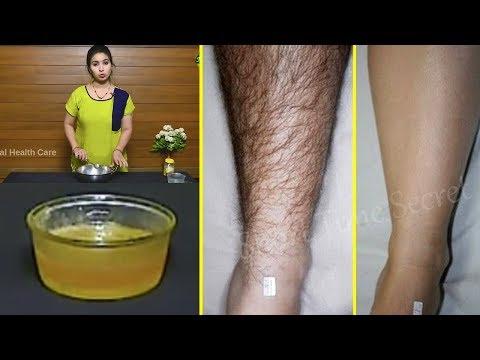 ఒక్కసారి ఇది రాస్తే చాలు మీకు అసలు ఎప్పటకి  అవాంఛిత రమ్మన్నా రావు   Homemade Wax for unwanted hair thumbnail
