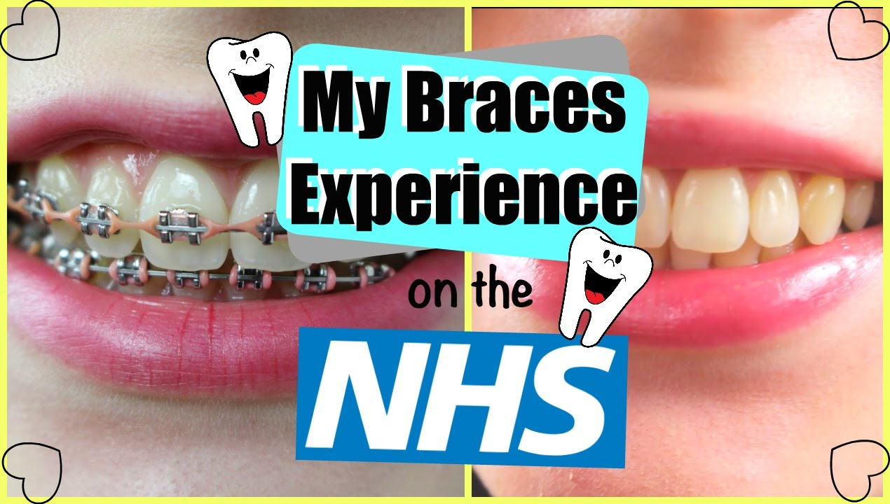 What Do Teen And Adult Braces Cost In The Uk What Type Is Best