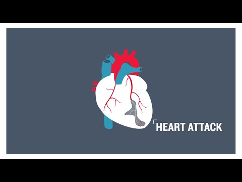 For Ladies, Blocked Arterial blood vessels Only some of the Cardiac Arrest Symptom