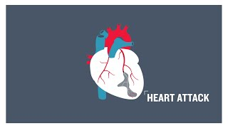 Heart attack, clogged arteries and atherosclerosis