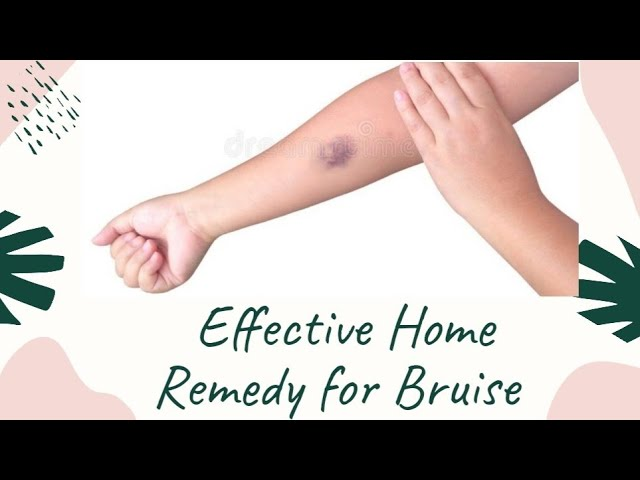 Bruise Removal Home Remedy | Easy Cure For Bruise At Home | Heal Bruises Quickly | Dr. Akhila Vinod