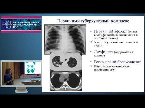 Н.А. Ильина - Дифференциальная диагностика туберкулеза органов дыхания у детей