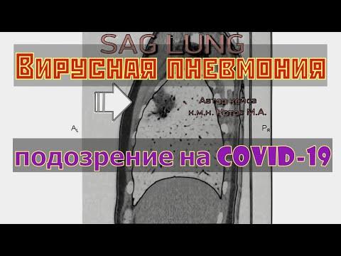 Вирусная пневмония на расшифровке КТ легких с подозрением на коронавирус COVID 19