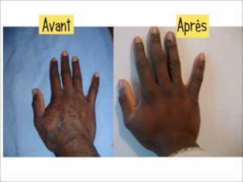 psoriasis visage traitement naturel efficace - YouTube