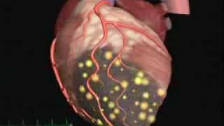 Fibrillazione Ventricolare post ischemica