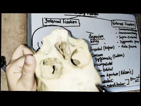 Internal Fixation (mandible Fracture) - Part 1