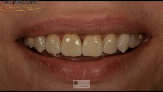 Laminate veneers from preparation to cementation