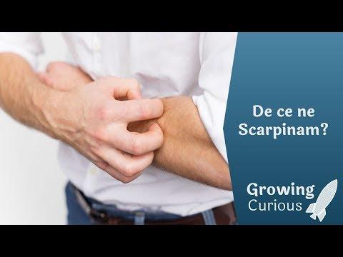 scleroterapia varicelor pret mâncărimi de vițel când stau în picioare
