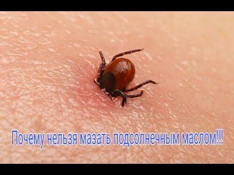 Как вытащить клеща! Как быстро вытащить клеща из тела человека|How to pull the tick!
