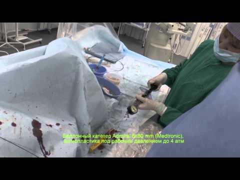 Реканализация подколенной артерии - восстановление кровотока в нижней конечности