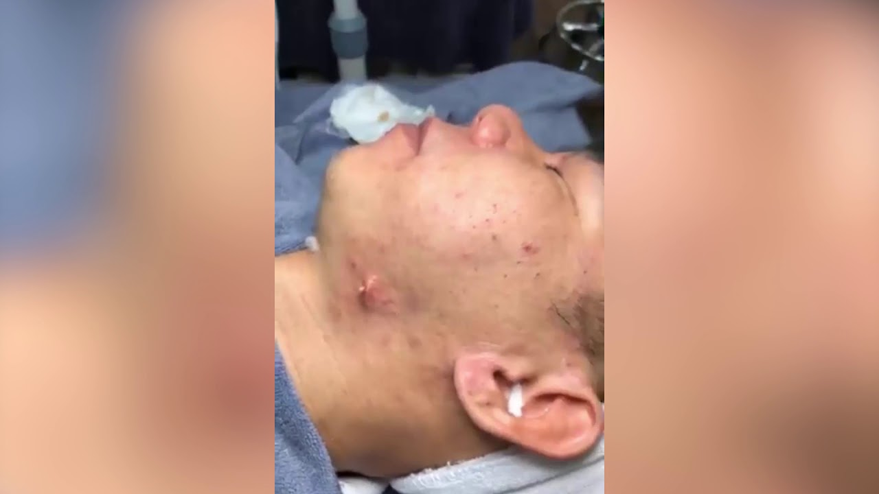 Giant Pimple Popped on Man's Neck | Pimple Popping 😝