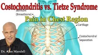 Costochondritis vs  Tietze's Syndrome (Pain in Chest Region) - Dr Mandell