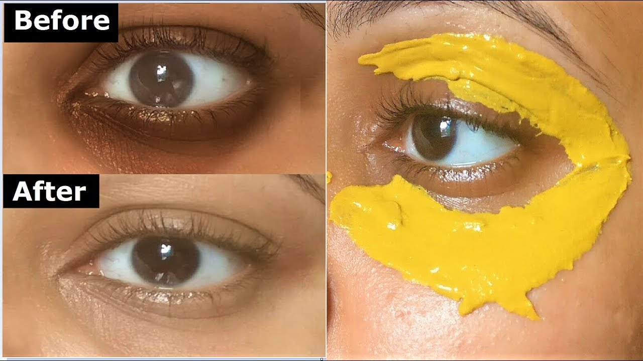 Turmeric Eye mask to Remove DARK CIRCLES, Under Eye ...