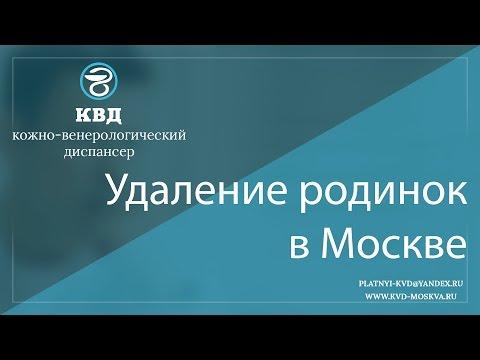 194  Удаление родинок в Москве