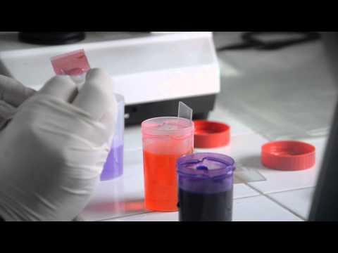 Vidéo laboratoire d'analyses médicales  ANHICHEM