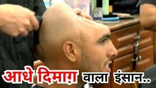 इस आदमी का सिर लोहे के ROD से टकरा गया और ये हाल हुआ (Medical Science Hospital Brain Case)