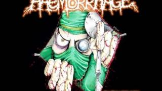 Haemorrhage - Slithering Maceration of Ulcerous Facial Tissue (General Surgery cover)