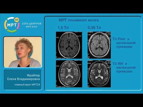 МРТ-иссследования. Показания. Противопоказания. Роль контрастирования