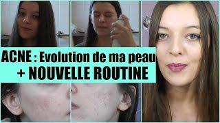 ACNE : Evolution de ma Peau + Nouvelle Routine (pour peau sensible, et acné)