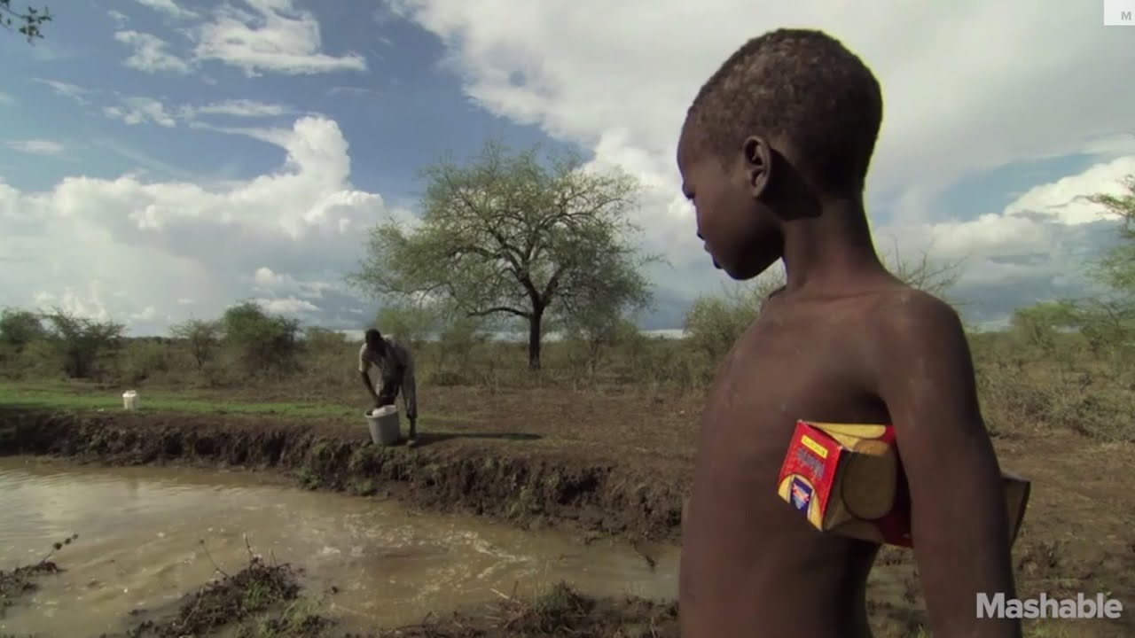 Real Life Chestbursters: Battling The Dreaded Guinea Worm