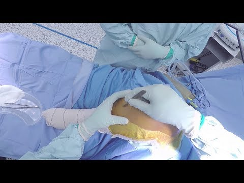 Total Knee Replacement - Surgical Technique
