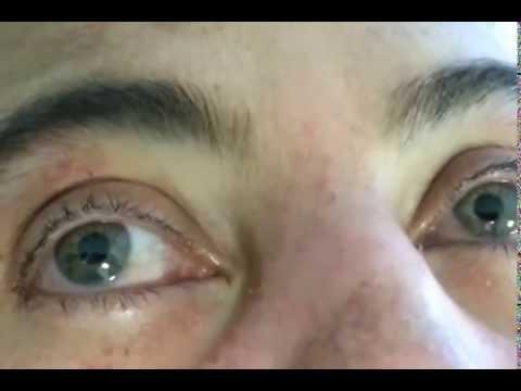 Hippus pupilar