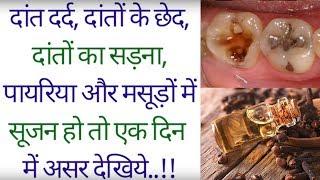 दांत दर्द, दांतों के छेद, दांतों का सड़ना, पायरिया और मसूड़ों में सूजन हो तो ये एक दिन में असरदेखिये