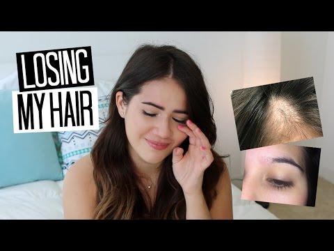 Losing My Hair at 22: My Alopecia Story