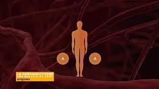 #1 La drépanocytose qu'est-ce que c'est ?