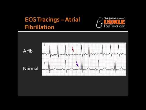 ECG Tracings -- Atrial Fibrillation