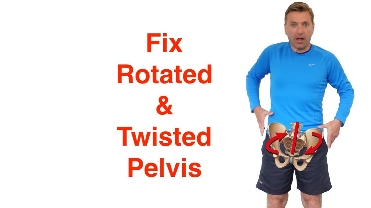 Best Rotated Pelvis Correction Exercises