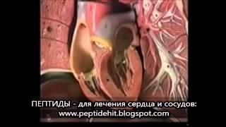 Симптомы коронарной болезни сердца